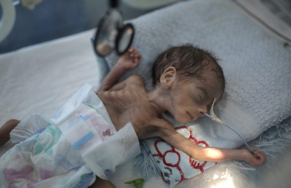 Innan året är slut kan hälften av barnen i Jemen vara undernärda.