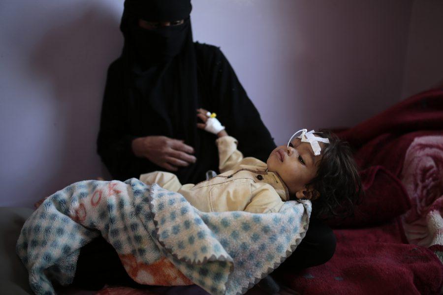 Undernärd pojke i Jemen, ett av de länder där barn drabbas värst av svält.